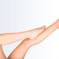 Laser Treatment of Varicose Leg Veins